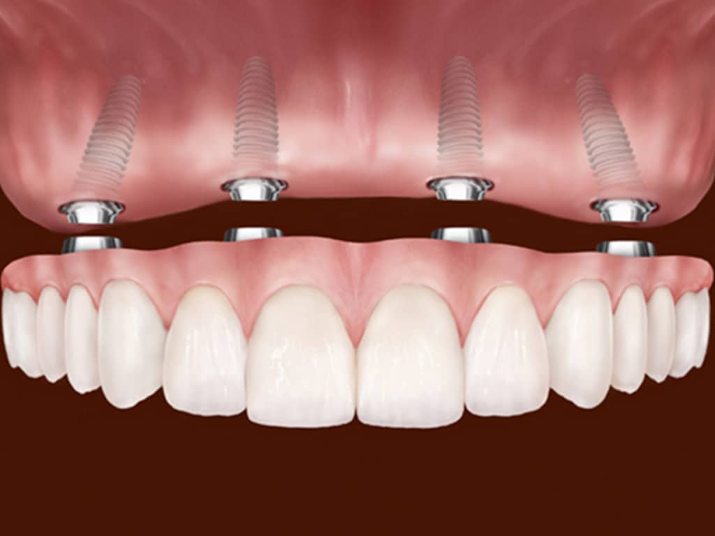 Denture & Implant Centre Red Deer