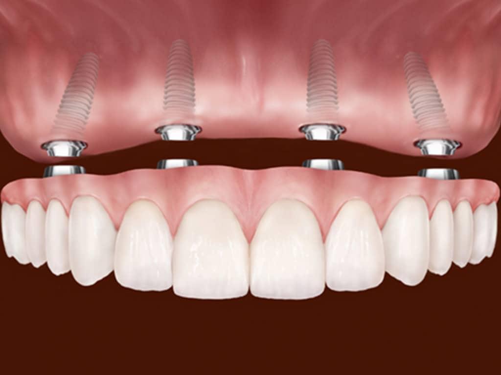 Denture & Implant Centre Red Deer