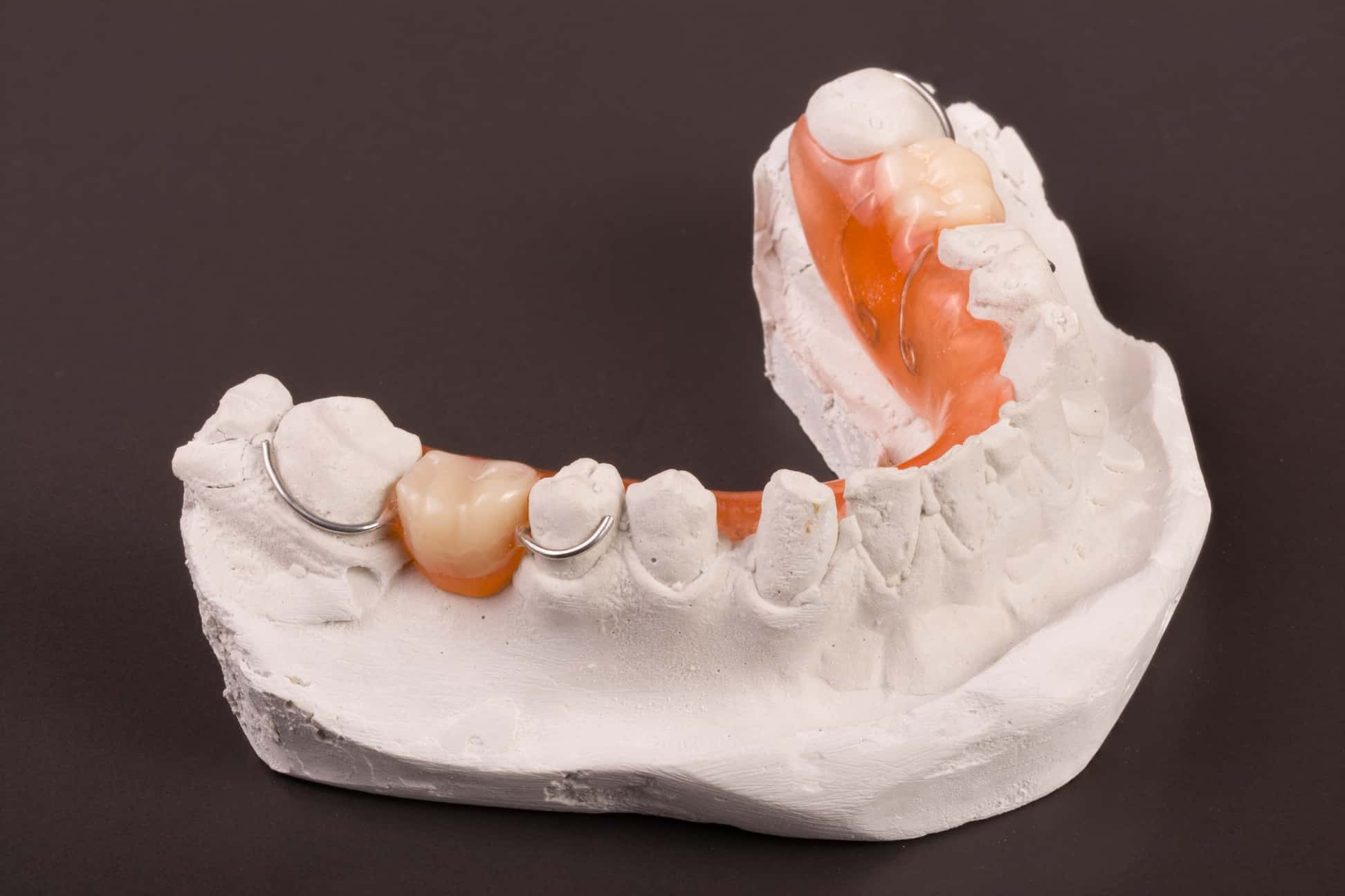 Restoring Your Smile With Partial Dentures