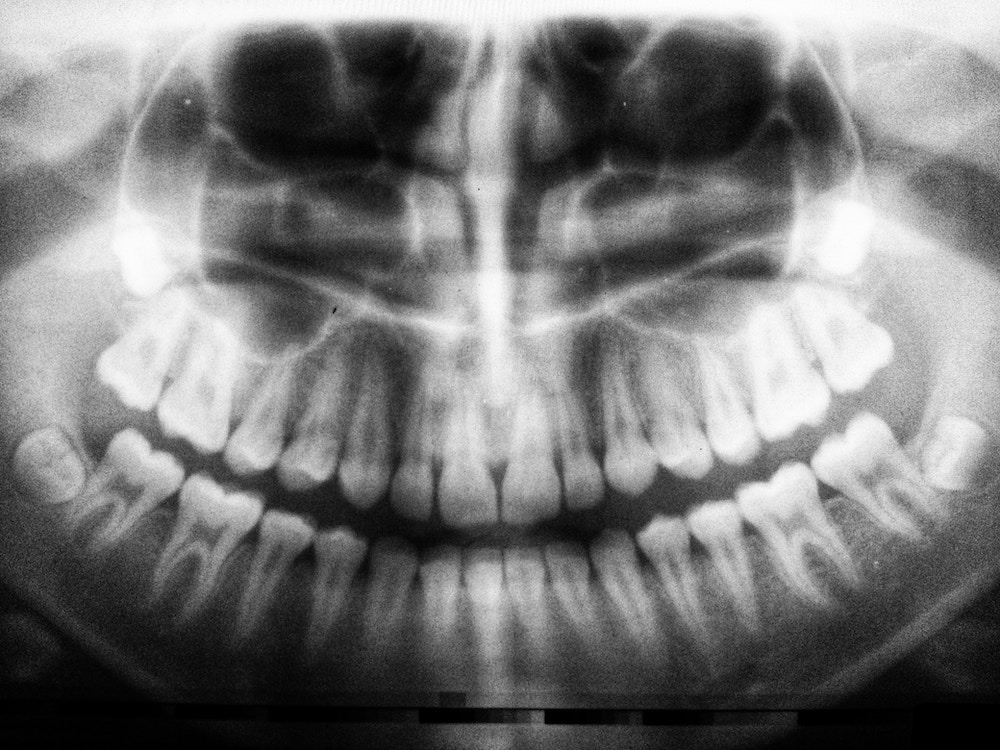 Bone Resorption: What is it and Why Does it Happen?