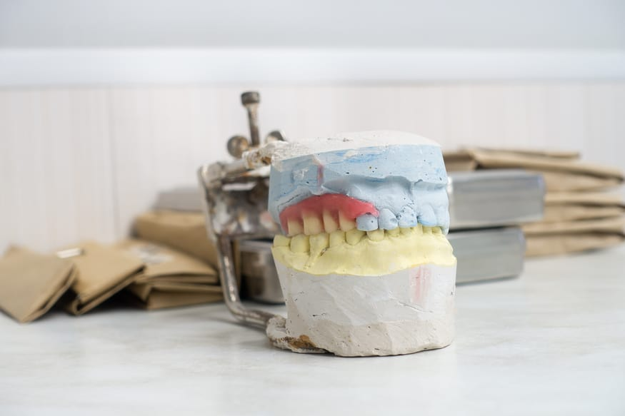 Can I Get Dentures If I Haven't Had Teeth for a Long Time?